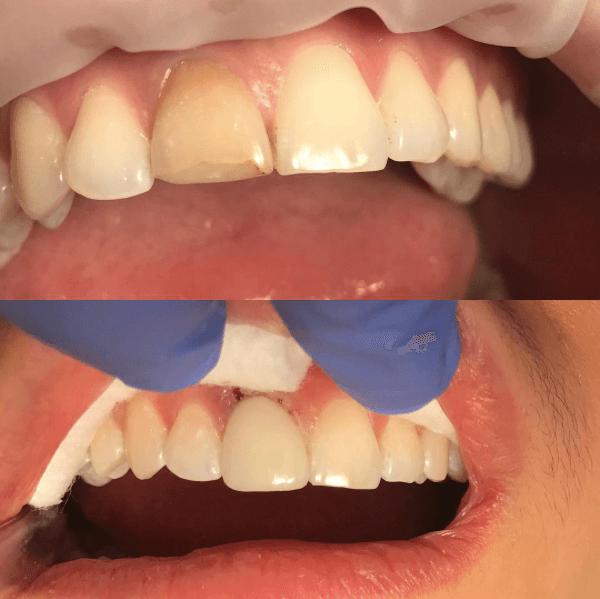 Узнай сколько стоит отбеливание зубов в Самаре — стоимость